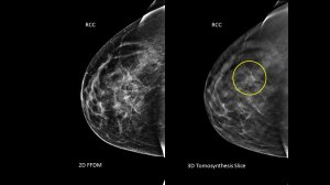 A 46 y/o woman presents for yearly screening mammography. The 3D mammogram revealed a 15 mm mass (see circle), which is hidden on the standard 2D mammogram. Biopsy revealed invasive ductal carcinoma.